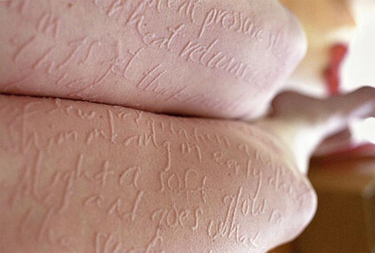аллергия на прикосновения